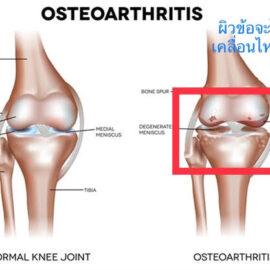 เข่าเสื่อม – Osteoarthritis knees